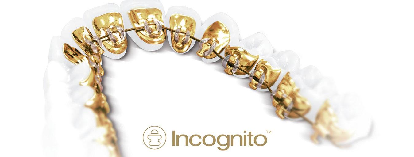 3M-Incognito-Image-1
