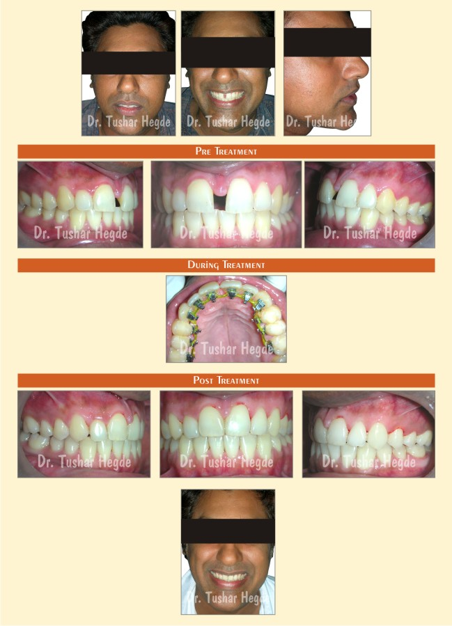 dr for braces in kandivali